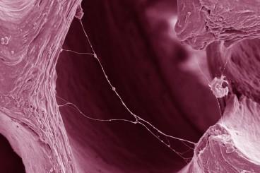 Ingegneria Tissutale per la Medicina Rigenerativa